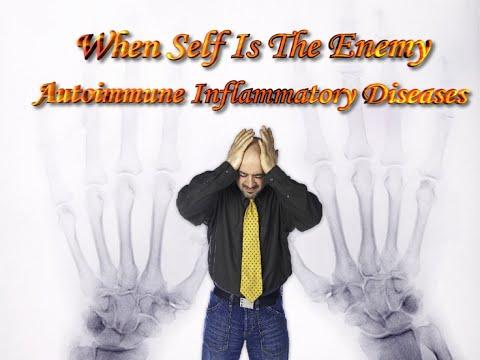 Autoimmune Inflammatory Disease - When self is the enemy