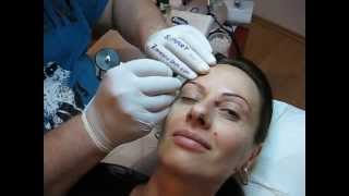 Tatuaj Permanent Sprancene  40% Clinica Slimart make up artist Zarescu Dan micropigmentare sprancene