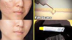 hqdefault - Acne Scar Treatment Gel