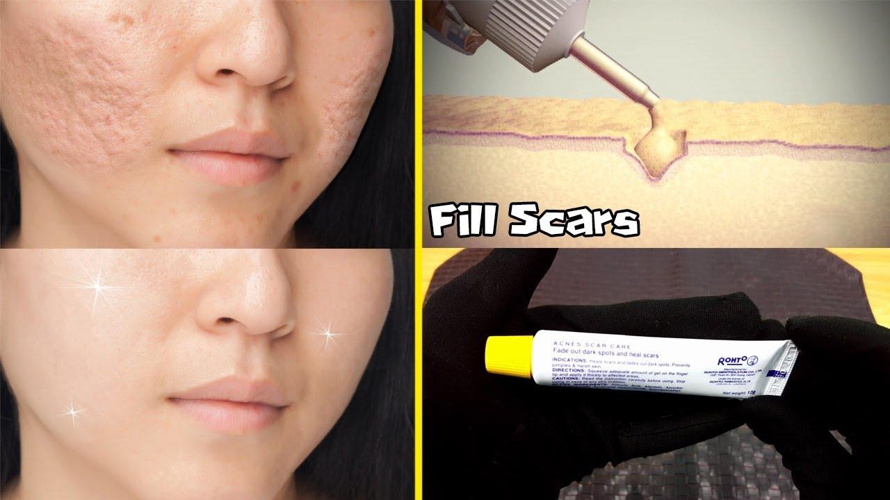 GET RID OF ACNE SCARS: MEDICATED GEL ALSO EFFECTED ON PIMPLES URDU HINDI