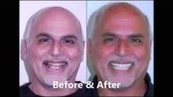 Affordable Dental Implants San Diego – San Diego Dentists Reviews!