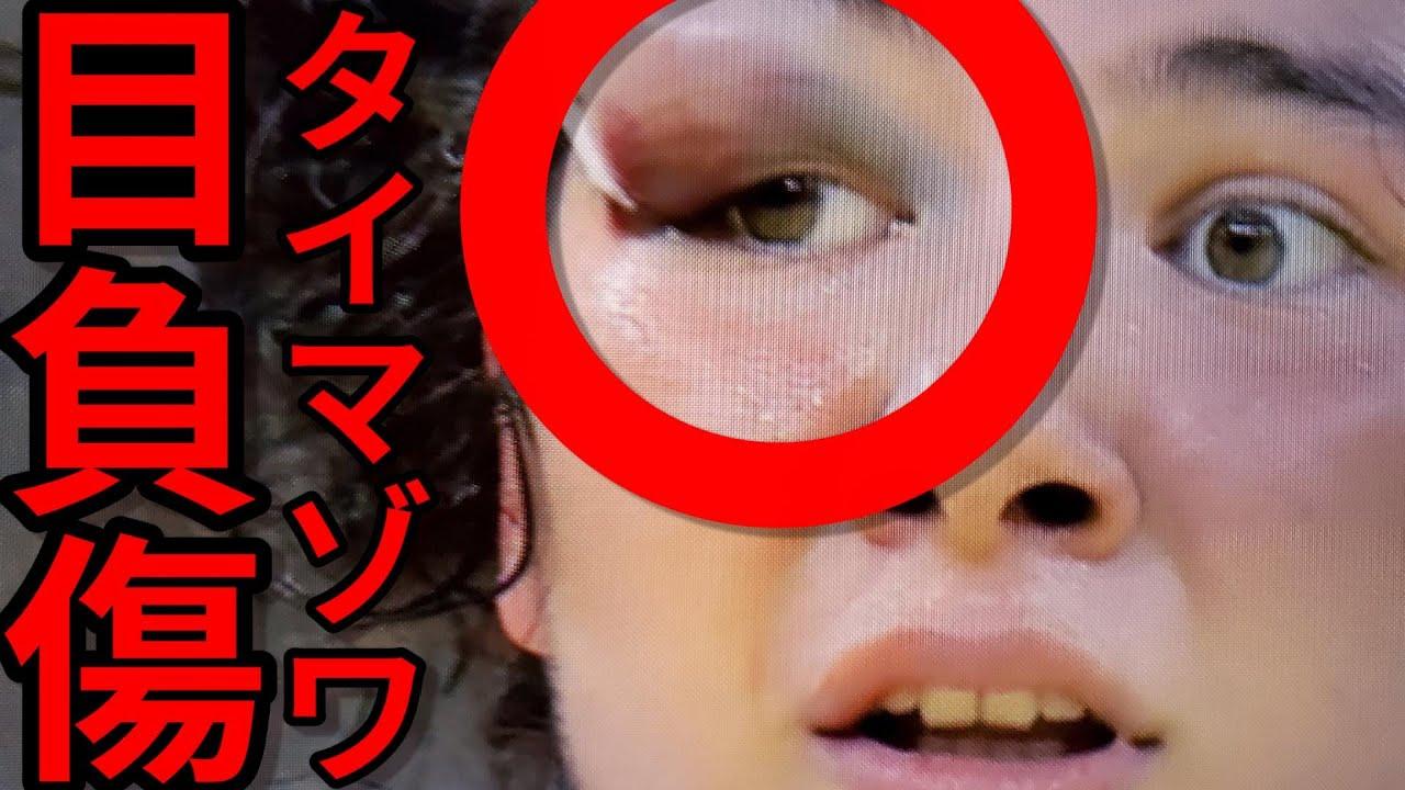 タイマゾワ選手 目を負傷!新井千鶴 金メダル 柔道女子70kg オリンピック 東京五輪