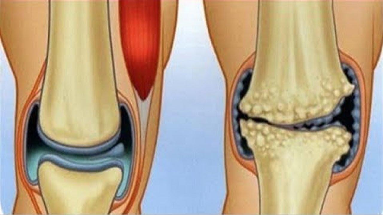 Arthrose mit Gewürzen behandelbar?