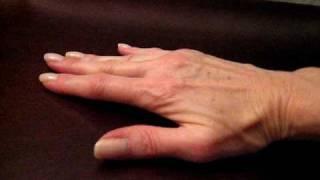 dupuytren s disease august 2009