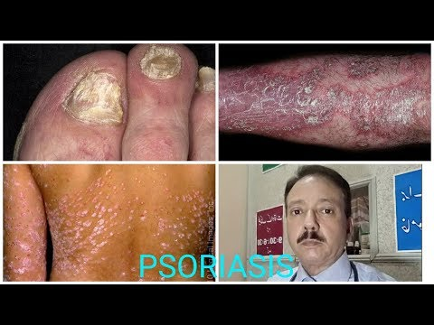 PSORIASIS TREATMENT I PSORIASIS HOMEOPATHIC TREATMENT I PSORIASIS KA ILAJ