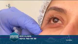 Göz Altı Işık Dolgusu Uygulaması ve Sonuç - Uygulamalı Gösterim   Günaydın Doktor