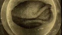 Gestation of Ovum (1924), pt 2 of 2
