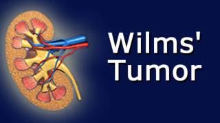 Wilm's Tumor.