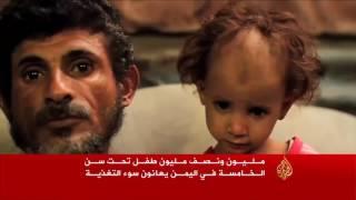 مليون ونصف من أطفال اليمن يعانون سوء التغذية