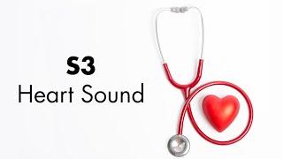 S3 Heart Sound - MEDZCOOL