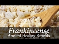 The Benefits and Uses of Frankincense Essential Oil