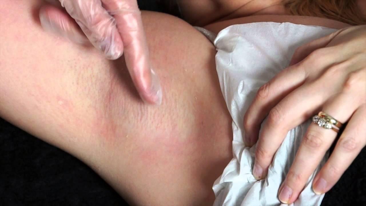 Bikini line bruising from waxing