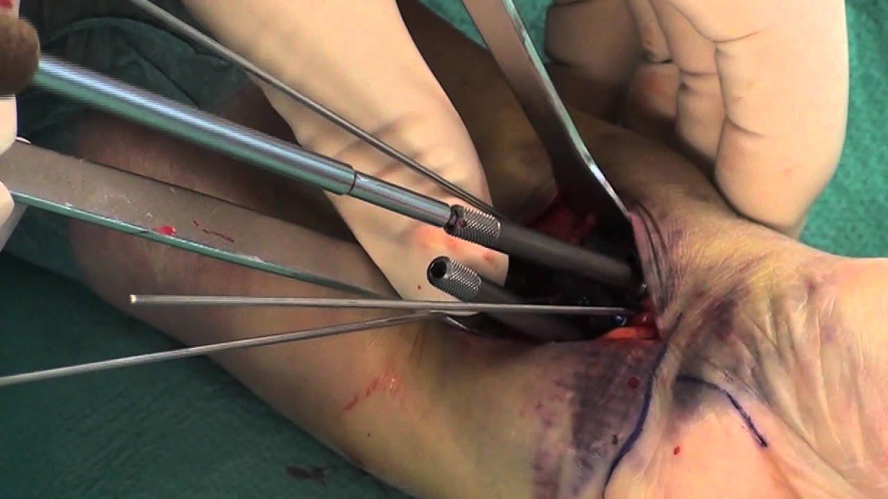 Minimal invasive Versorgung der distalen Radiusfraktur (körperferner ...