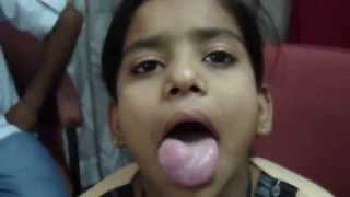 Cancer Tongue 1 Squamous Cell Carcinoma Tumor.MP4