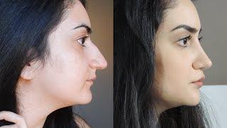 Mijn neuscorrectie in Iran: uitleg en advies, arts, prijs, before & after | Kamelia Tajabadi