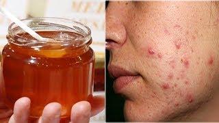Cách trị mụn bằng mật ong ngay tại nhà hiệu quả 100% khiến chị em mê mẩn