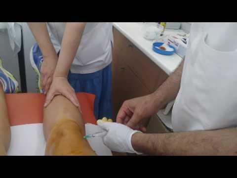 boala la genunchi Pret)