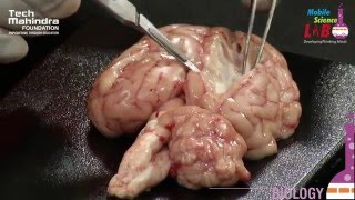 Dissection of a Brain thumbnail