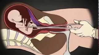 NGERI!! beginilah proses Aborsi dengan sistem kuret