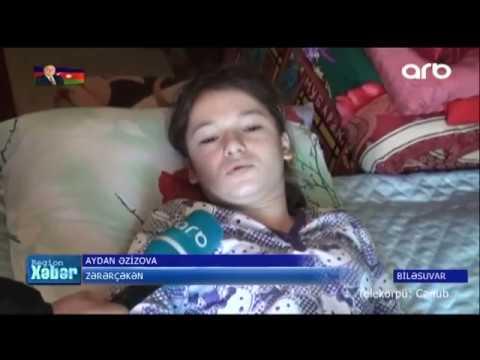 Biləsuvarlı 12 yaşlı Aydan həkimlərin səhvi ucbatından sağlamlığını itirib