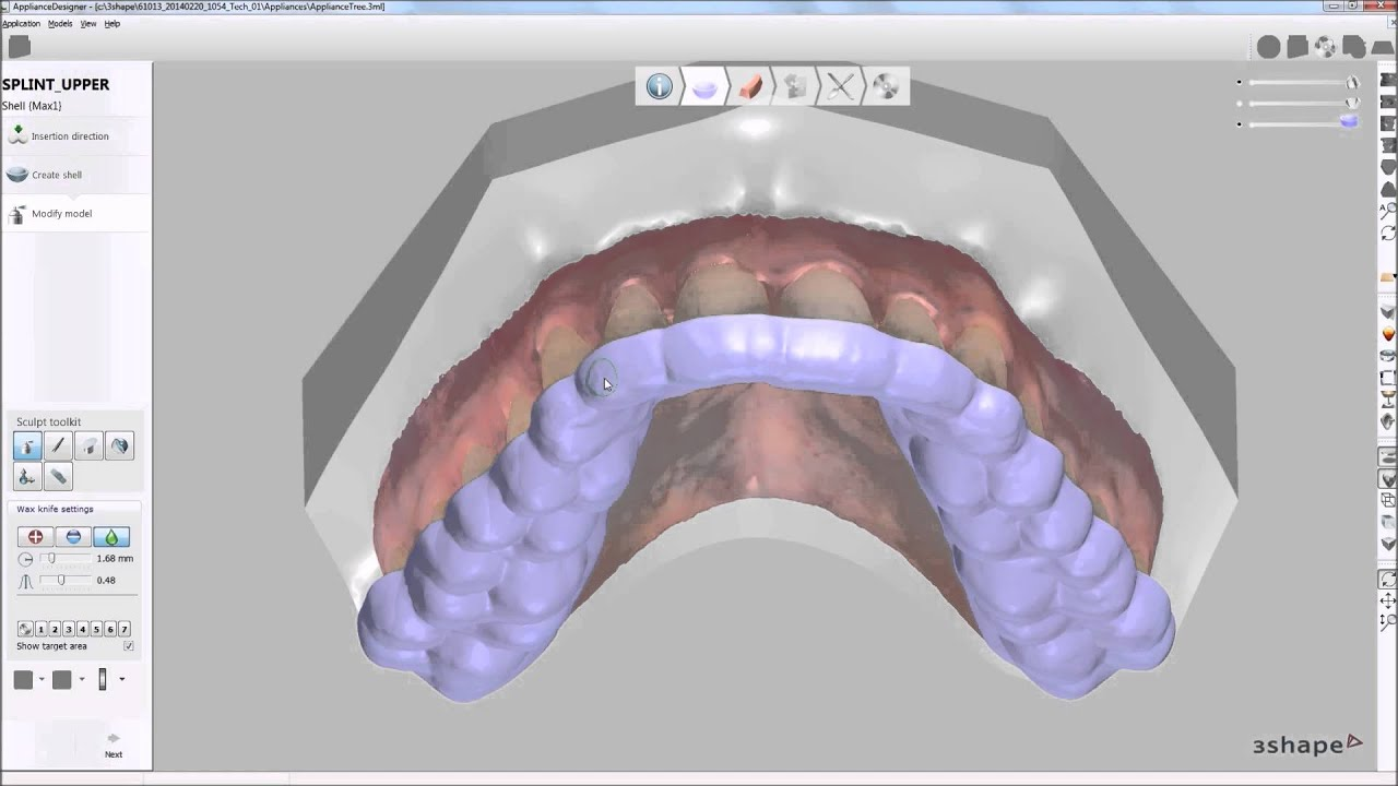 3shape Dental System 2014 Splint Designer Youtube