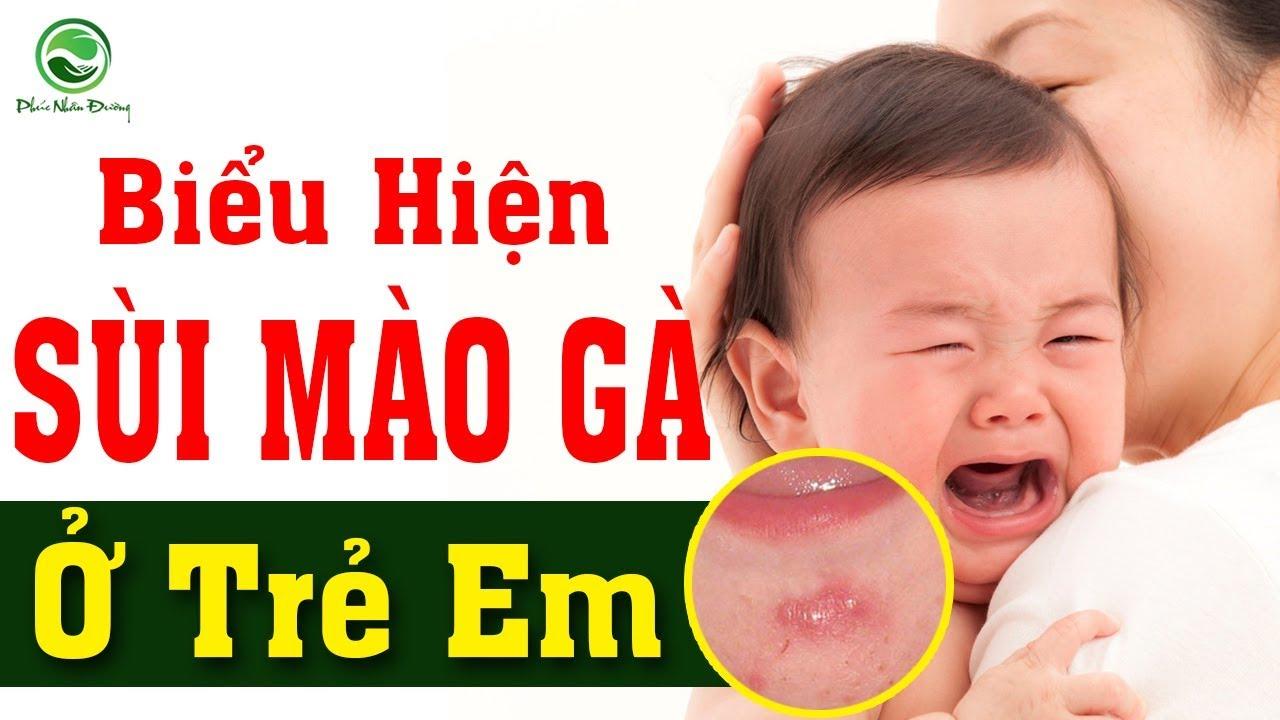 Biểu hiện bệnh sùi mào gà ở trẻ em   Cách điều trị bệnh Sùi mào gà ở trẻ em