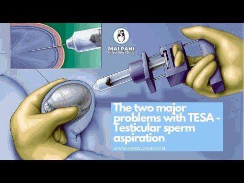 The 2 Major Problems with TESA (Testicular Sperm Aspiration) drmalpani malpaninifertilityclinic