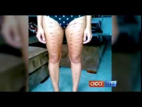 Warning Medspa Deaths Laser Hair Removal Laser Burns Youtube