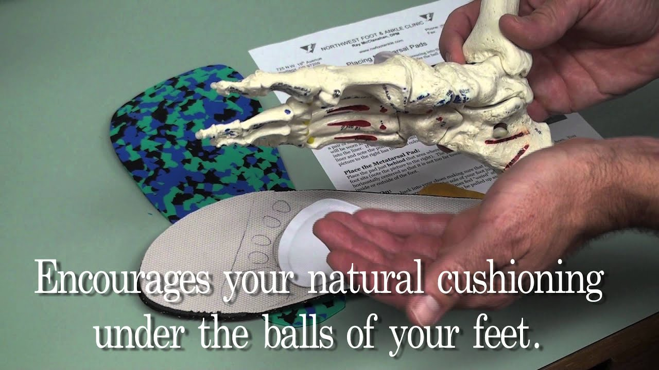 How To Place Metatarsal Pads Youtube