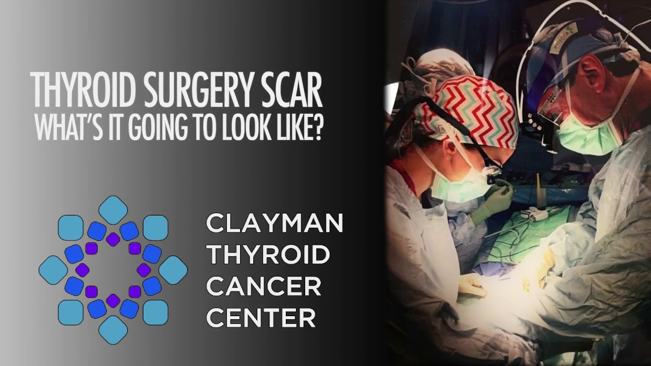 Thyroid Surgery Scar What Will It Look Like Youtube