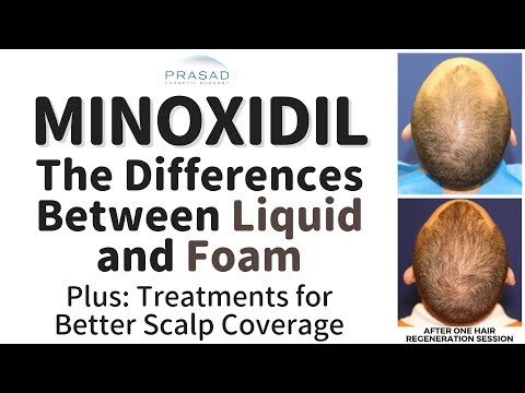 how-minoxidil-liquid-and-foam-differ-with-potential-scalp-irritation,-and-other-hair-loss-treatments