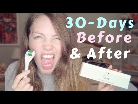 I tried the SDARA DERMA ROLLER for 30 days - Micro Needling Before and After - EVERYTHING TO KNOW