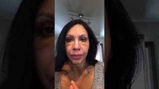 Lower Eye Blepharoplasty day 3 after  surgery recovery process