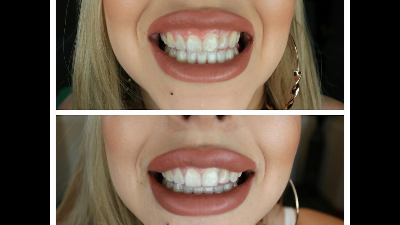 Black Charcoal To Whiten Teeth Does It Really Work Youtube