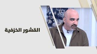 د. خالد عبيدات - القشور الخزفية