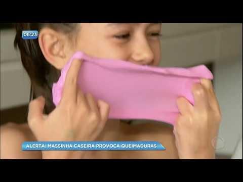 Slime caseiro pode provocar queimaduras em crianças