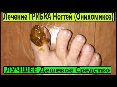 Эта дешевая мазь уничтожает споры  грибка  с ногтей! Лечение грибка ногтей.