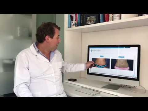 Antes y ahora Liposucción - Dr. Rodrigo Soto