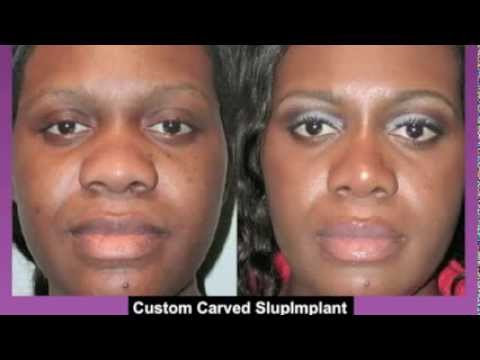 Top Shocking Plastic Surgeries | Black Celebrity Edition ...