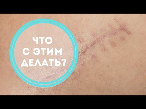 Вопрос: Как уменьшить шрамы на лице?