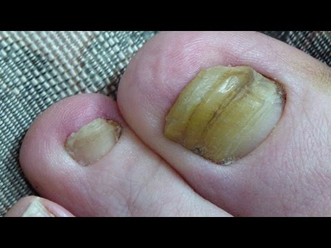 Toenail Fungus Cured 2 Years Progress