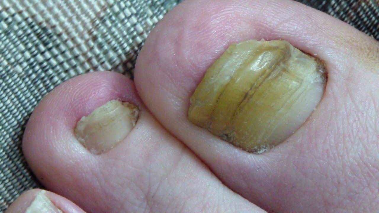 Toenail Fungus Cured 2 Years Progress