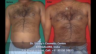 Body Fat Reduction Bangalore - WhatsApp 8050008855 - Liposuction Procedure Actual Client