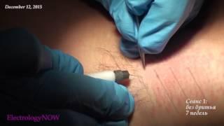 ЧАСТЬ 1: Удаление волос на подмышках
