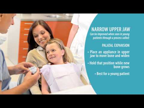Underbite & Narrow Upper Jaw | Skeletal Problems of the Mouth