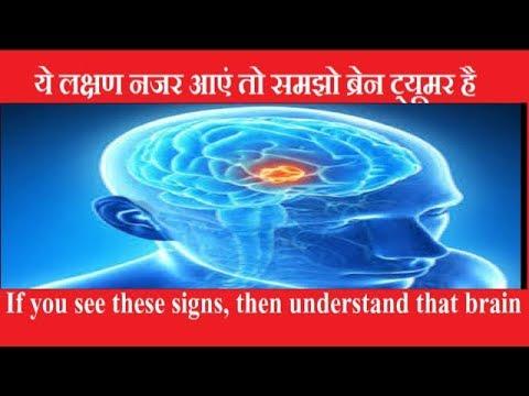 ये लक्षण नजर आए तो समझो ब्रेन ट्यूमर है || brain tumor symptoms || brain tumor awareness