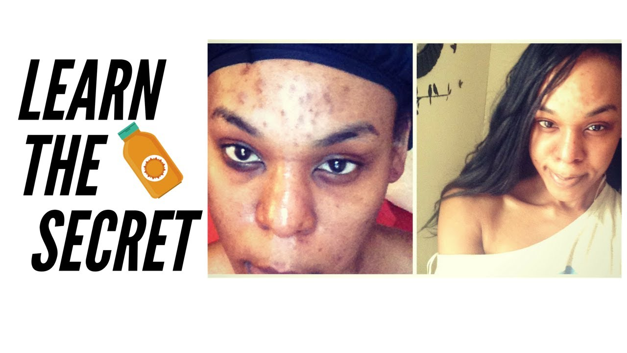 How to get rid of dark spots on face overnight
