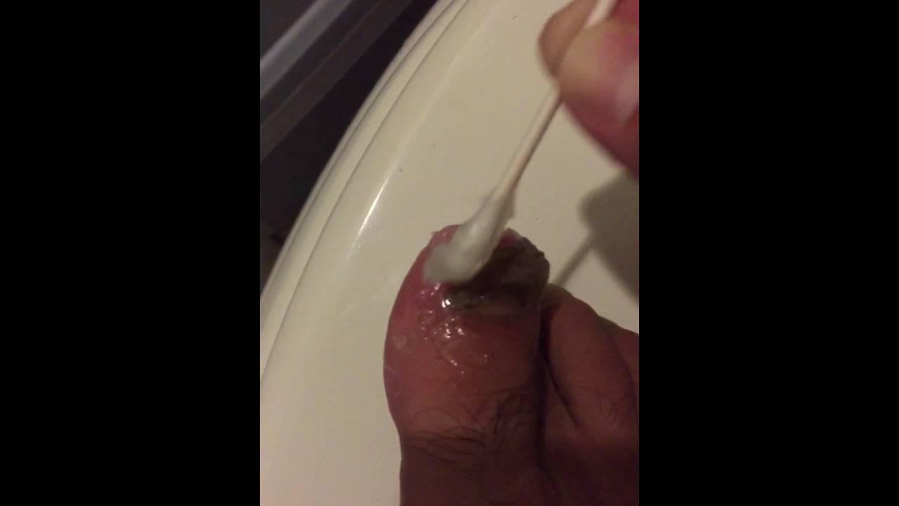 Treat toe nail fungus with Vicks vapor rub - YouTube