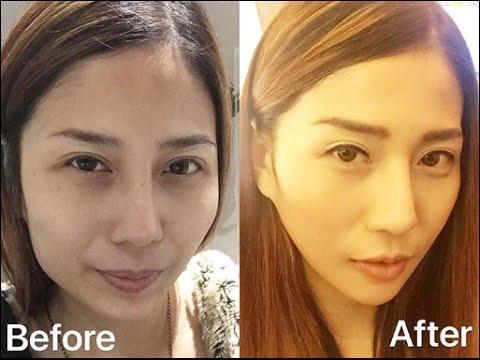 Phẫu thuật thẩm mỹ Hàn Quốc - hình ảnh thực tế trước và sau