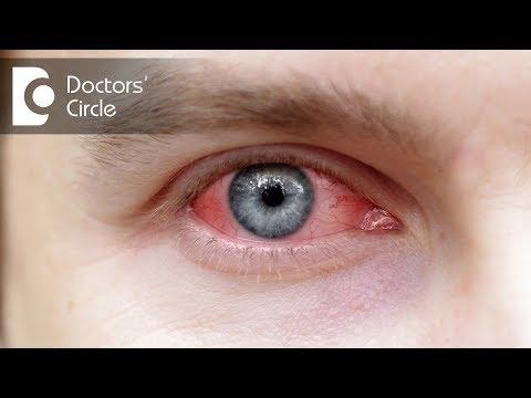 How to manage Eye Allergies? – Dr. Sriram Ramalingam